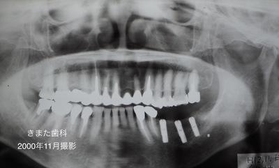 きまた歯科インプラント1.jpg
