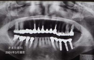 きまた歯科インプラント2.jpg