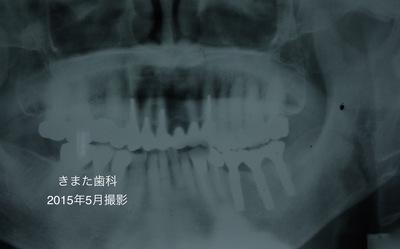 きまた歯科インプラント3.jpg