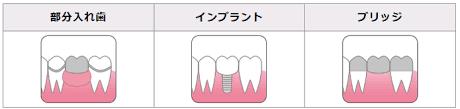 義歯.png